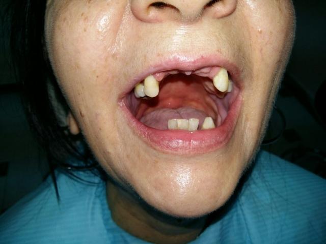 stomatoloska ordinacija batiko krusevac proteza najpovoljnije